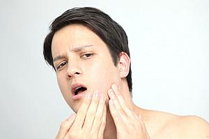 Aknenarben: Effektive und schonende Behandlung