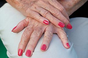 Altersflecken: Unschön, aber harmlos