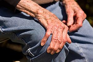Rheumatoide Arthritis: Beschwerdefrei Leben mit der chronischen Gelenksentzündung