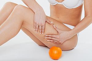 Kampf gegen die Cellulite: Auslöser, Symptome, Therapie & Vorbeugung