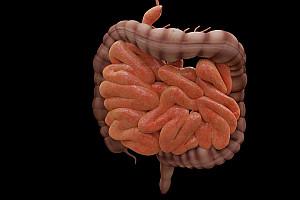 Darmsanierung: Gesunde Darmflora aufbauen und Immunsystem stärken