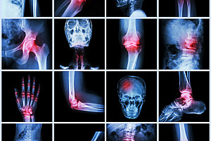 Entzündung: Lebensnotwendiger Schutzmechanismus des Körpers