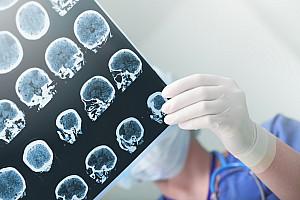 Epilepsie: Krampfanfälle und kurzzeitige Bewusstseinsstörungen