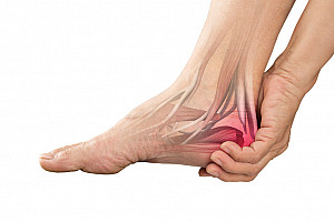 Fußschmerzen, Fersenschmerzen und Plantarfasziitis richtig behandeln