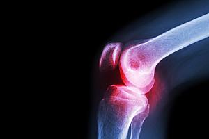 Gelenkschmerzen, ob Hüfte oder Knie eine Abnutzung ist vermeidbar