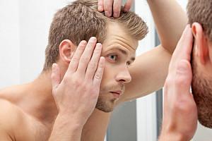 Haarausfall bei Frauen & Männern: Ursachen & wirksame Haarwuchsmittel