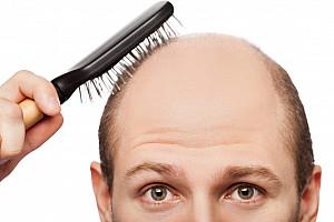 Haarausfall bei Männern – helfen Haarwuchsmittel wirklich?