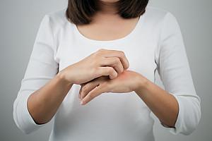 Kontaktallergie: Hautreaktionen auf Nickel und Modeschmuck