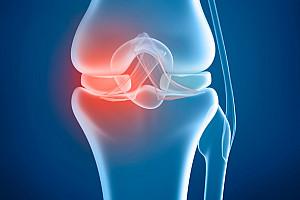 Meniskus – Der körpereigene Stoßdämpfer im Kniegelenk