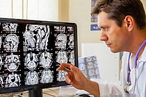 Schlaganfall: Sofortige Notfallversorgung reduziert Folgeschäden