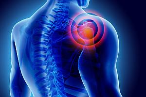 Schulterschmerzen: Ursachen erkennen, behandeln und vorbeugen