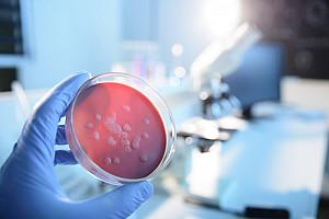 Tuberkulose: Schwindsucht in Deutschland selten