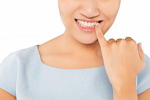 Parodontose: Zahnfleischentzündung behandeln