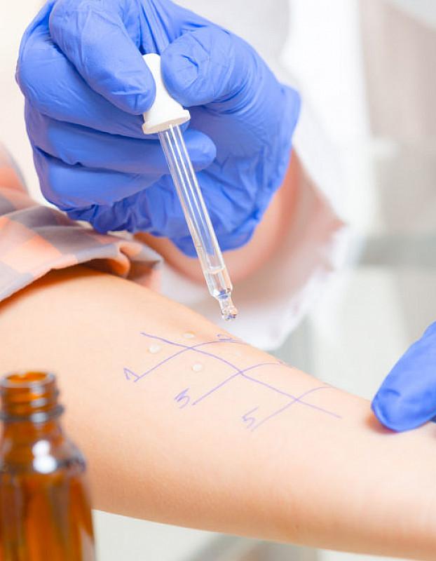 Wie stellt der Arzt eine Tierhaarallergie fest?