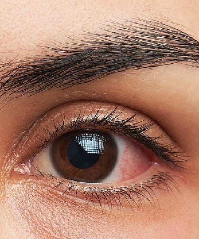 заболевания глаз из-за высокого кровяного давления
