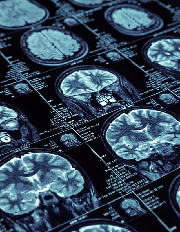 demenz nervenzellen sterben ab