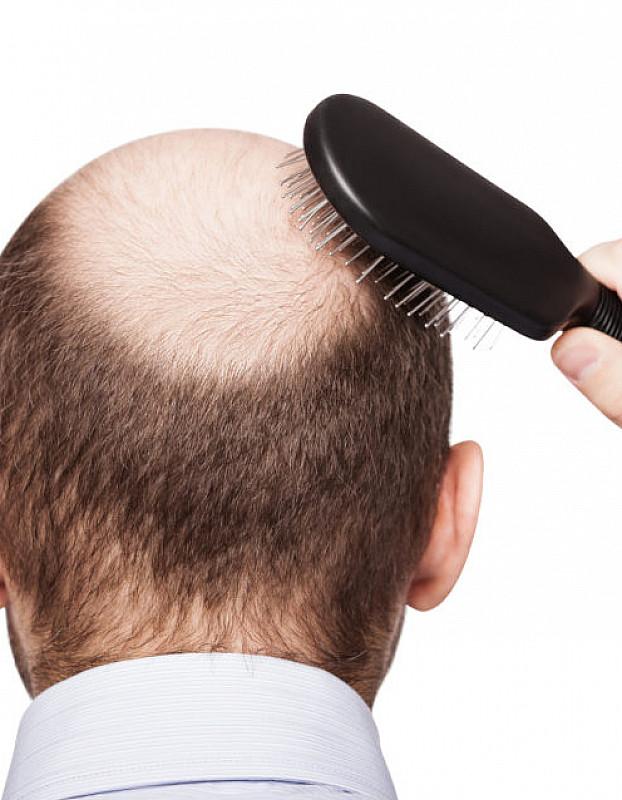 Behandlung Haarausfall Männer