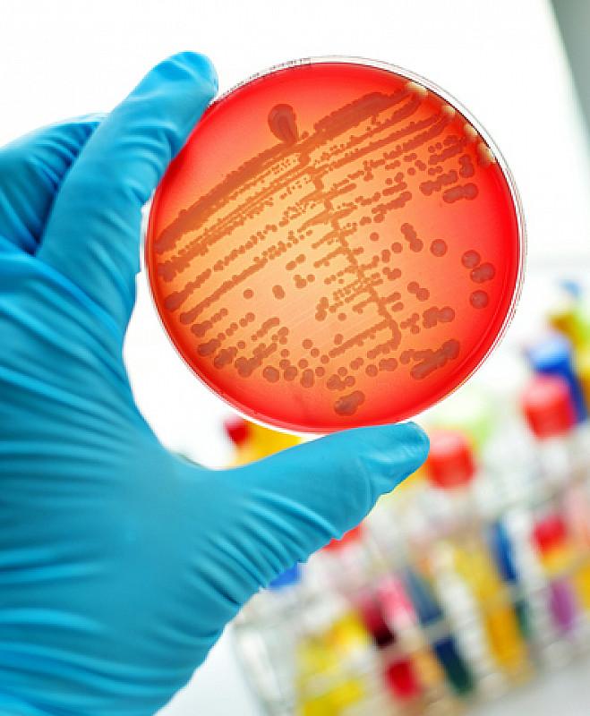 bakterien als ursache