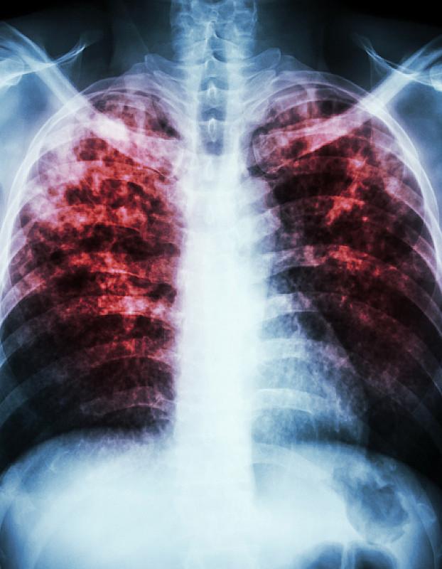 болезнь легких, угрожающая жизни