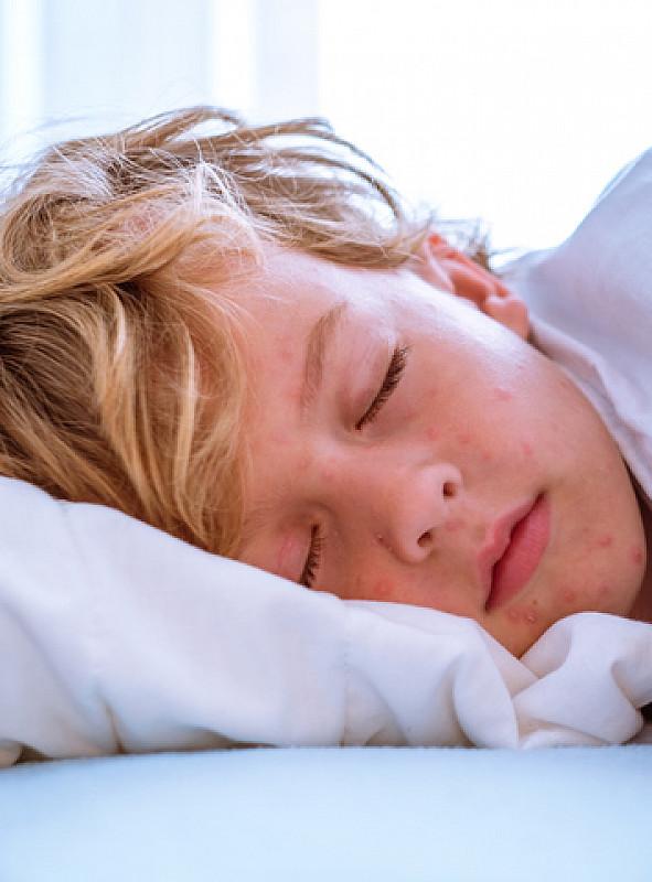 Behandlung Migräne bei Kindern
