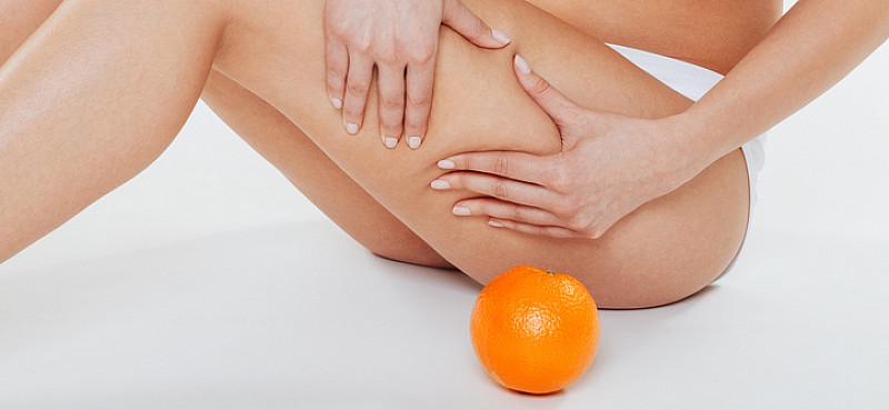 Kampf gegen die Cellulite: Auslöser, Symptome, Therapie und Vorbeugung