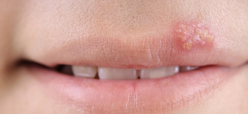 Herpes: Lebenslange Virusinfektion