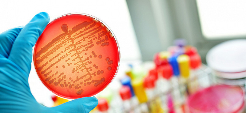 Pilzinfektionen Diagnose und Analsye