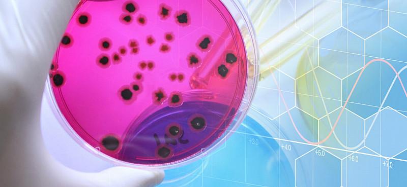 Salmonellen: Gefahr einer Lebensmittelvergiftung