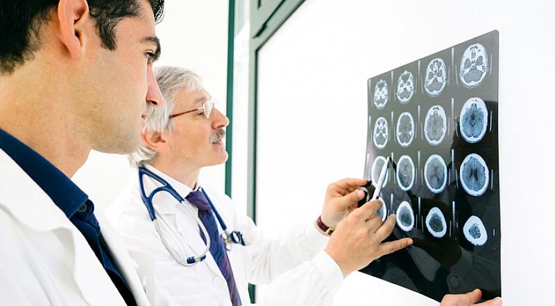 Gehirnuntersuchung kann antworten bringen