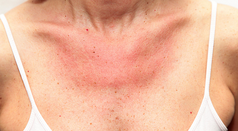 Sonnenallergie: schlimmer als herkömmlicher Sonnenbrand