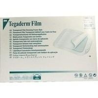 Tegaderm 3M Film 15.0cmx20.0cm, 10 ST, 3M Medica Zwnl.d.3M Deutschl. GmbH